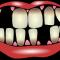 تساقط الاسنان