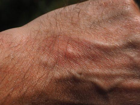 علاج الحكة الشرجية بالأعشاب الطبيعية